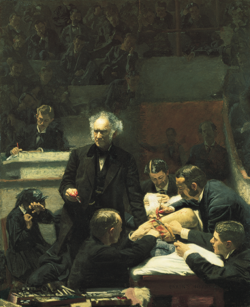 Ignorance is Bliss and often Gross : Famous portrait by Thomas Eakins shows reknown surgeon Dr. Samuel Gross and his team perfroming an amputation in unsanitary conditons. 'Little, if any faith, is placed by any enlightened or experienced surgeon on this side of the Atlantic in the so-called carbolic acid treatment of Professor Lister,' said Gross